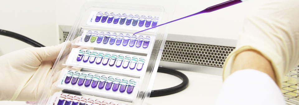 Análises Microbiológicas